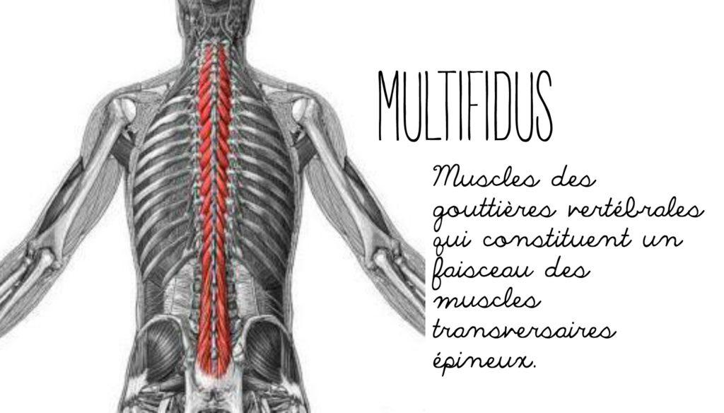 multifide
